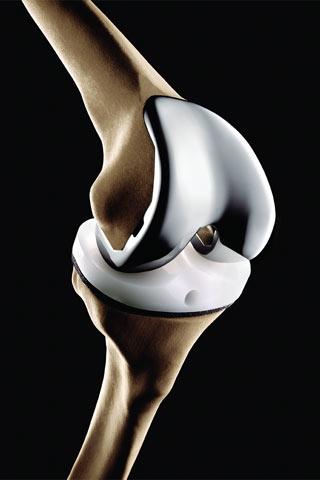 knee-implant