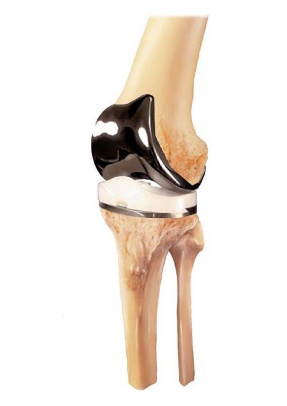 legion-total-knee-system_original
